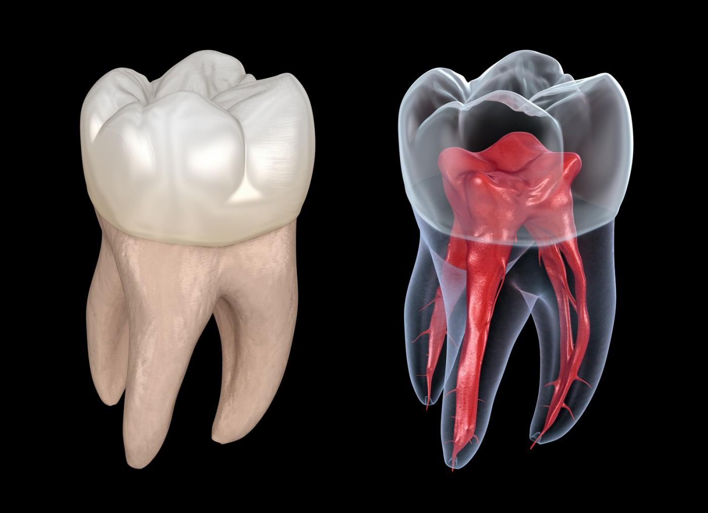 Când ai nevoie de tratament endodontic?