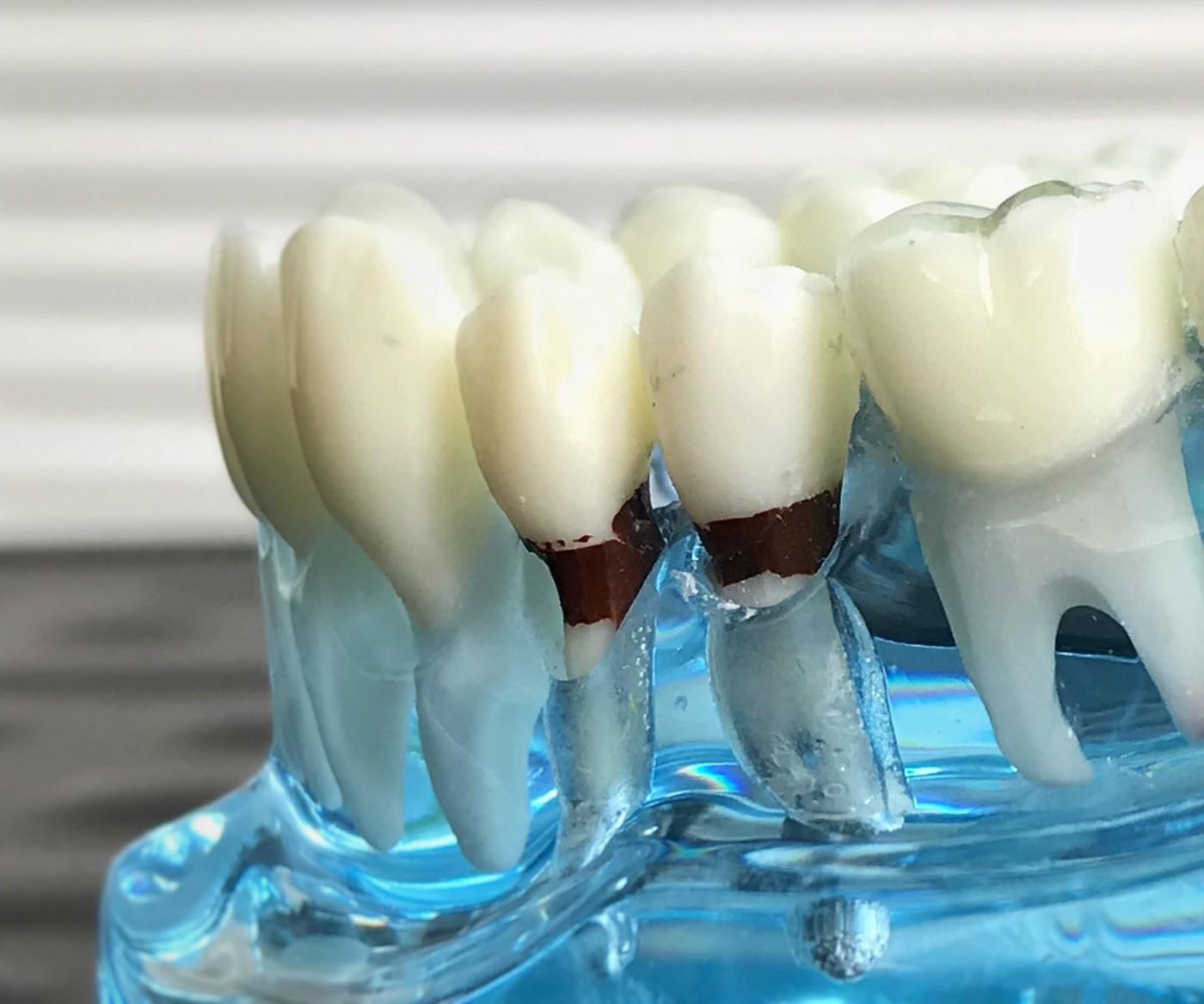 Factori favorizanți parodontoză
