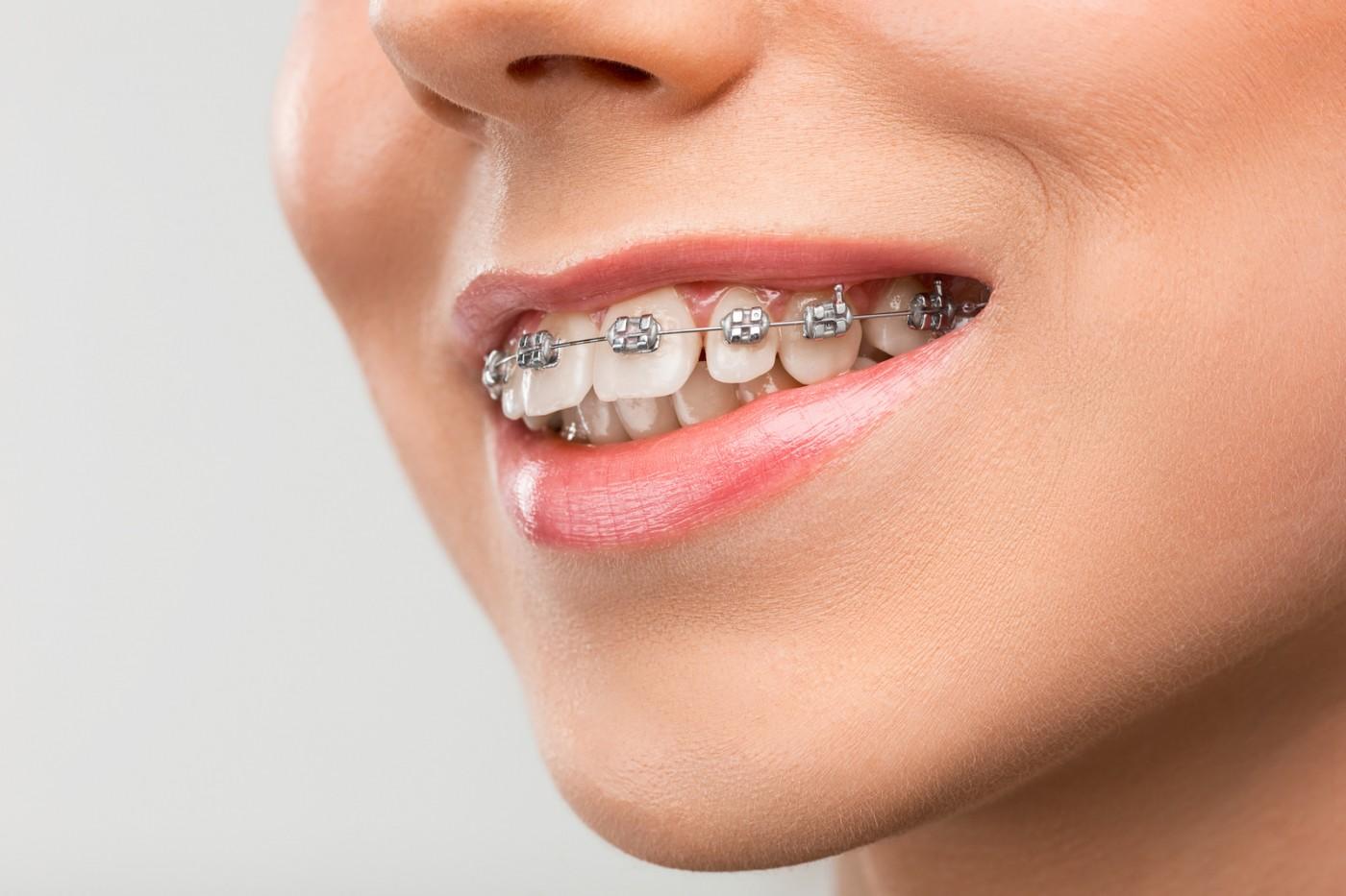 Suprapunerea dinților (overbite)