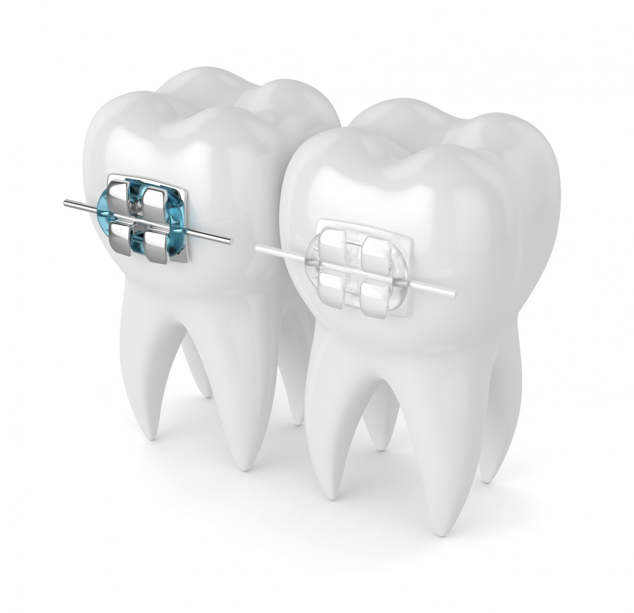 Aparat dentar adulți Brăila