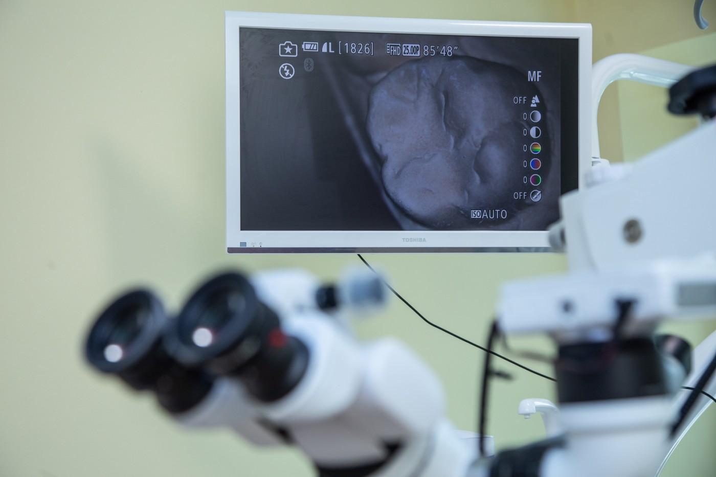SteliDental Brăila- tehnologii avansate de regenerare tisulară