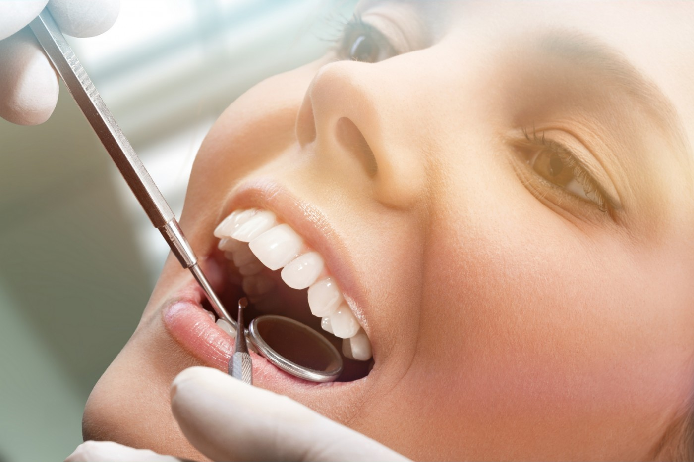 Implanturi dentare Stelidental