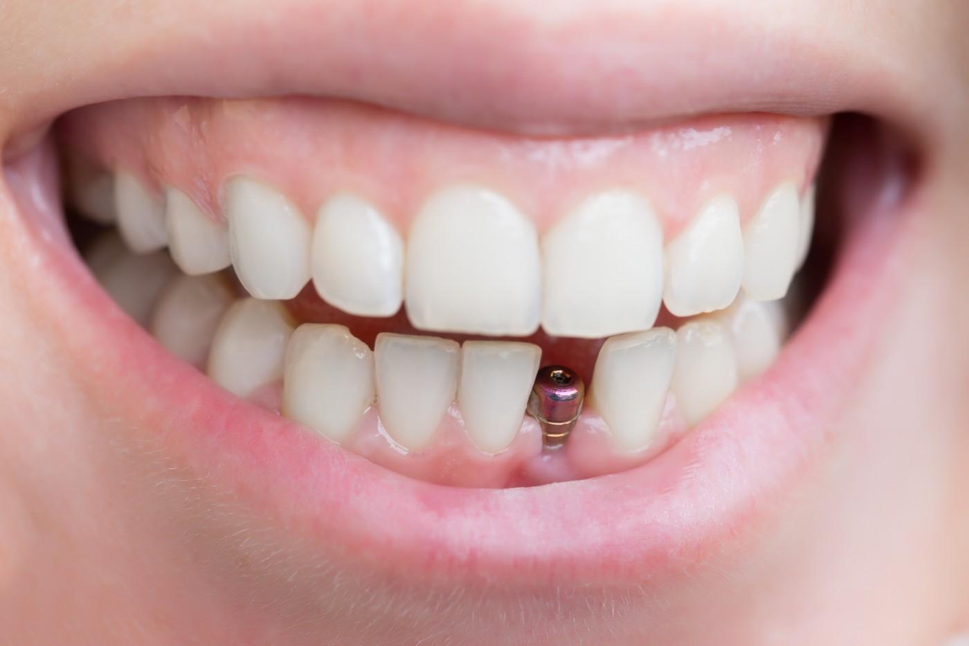 Chiar ai nevoie acum de un implant dentar?