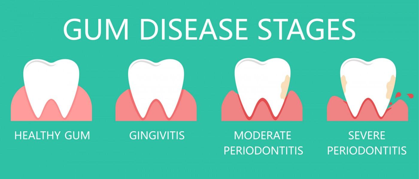 Stadii boală parodontală