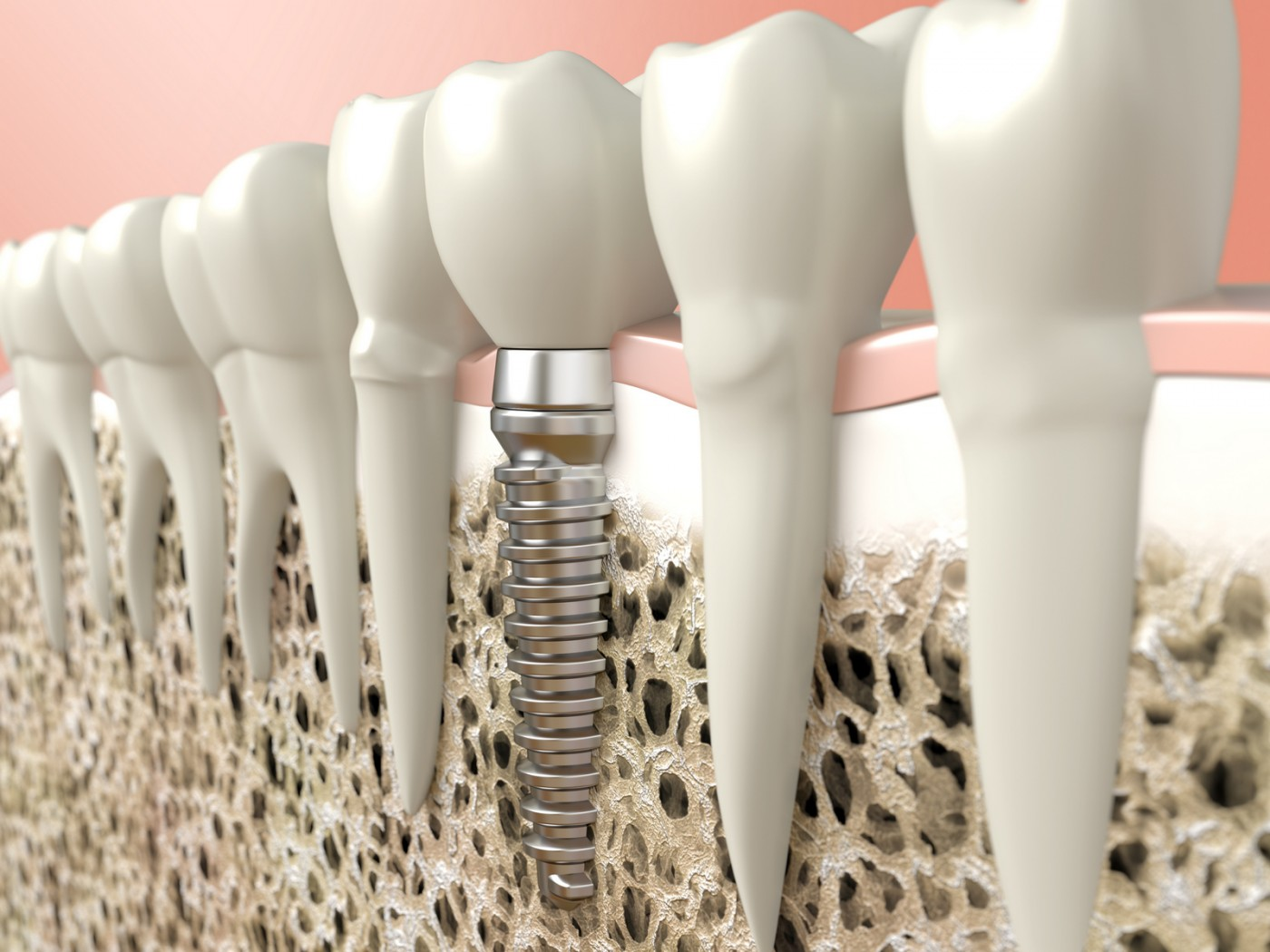 Cât rezistă un implant dentar