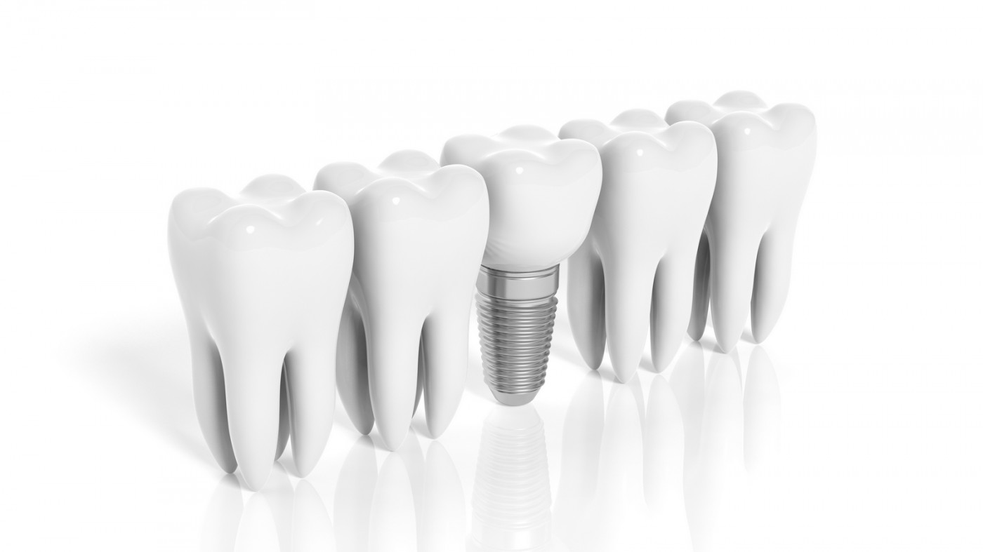 Implant dentar Brăila preț