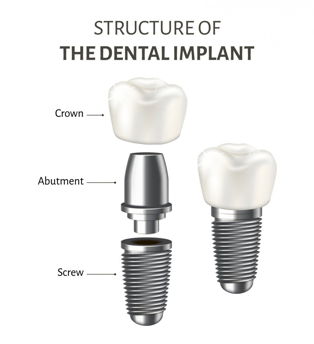 Implant dentar Braila