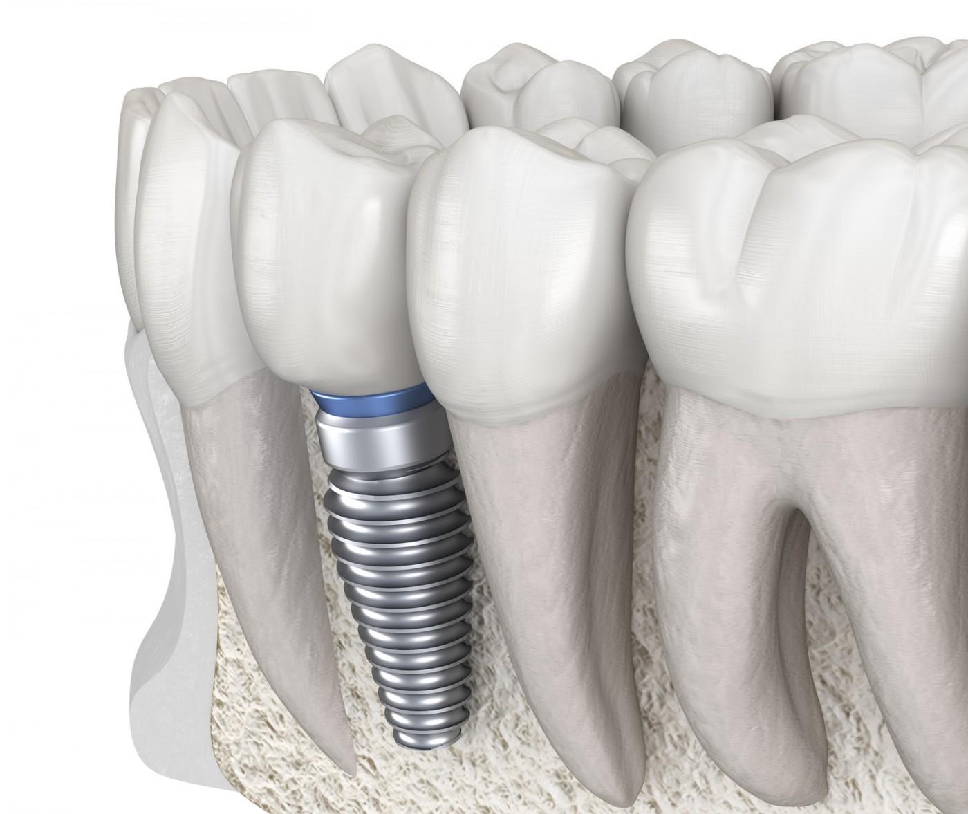 Contraindicații implant dentar