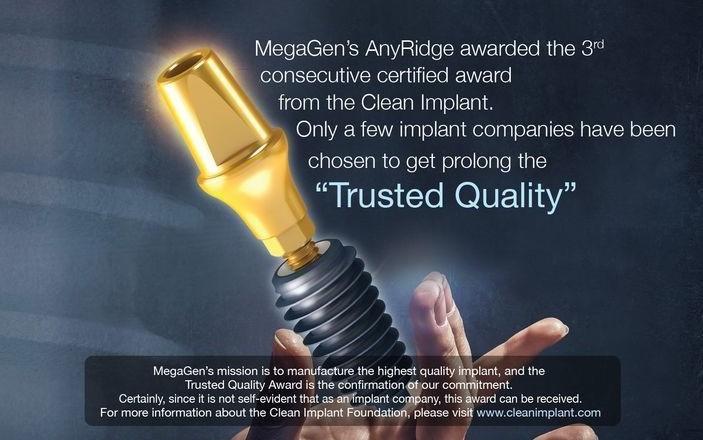 Implanturile MEGAGEN – Korea