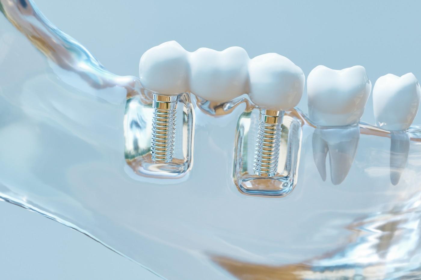 Implantul dentar doare?