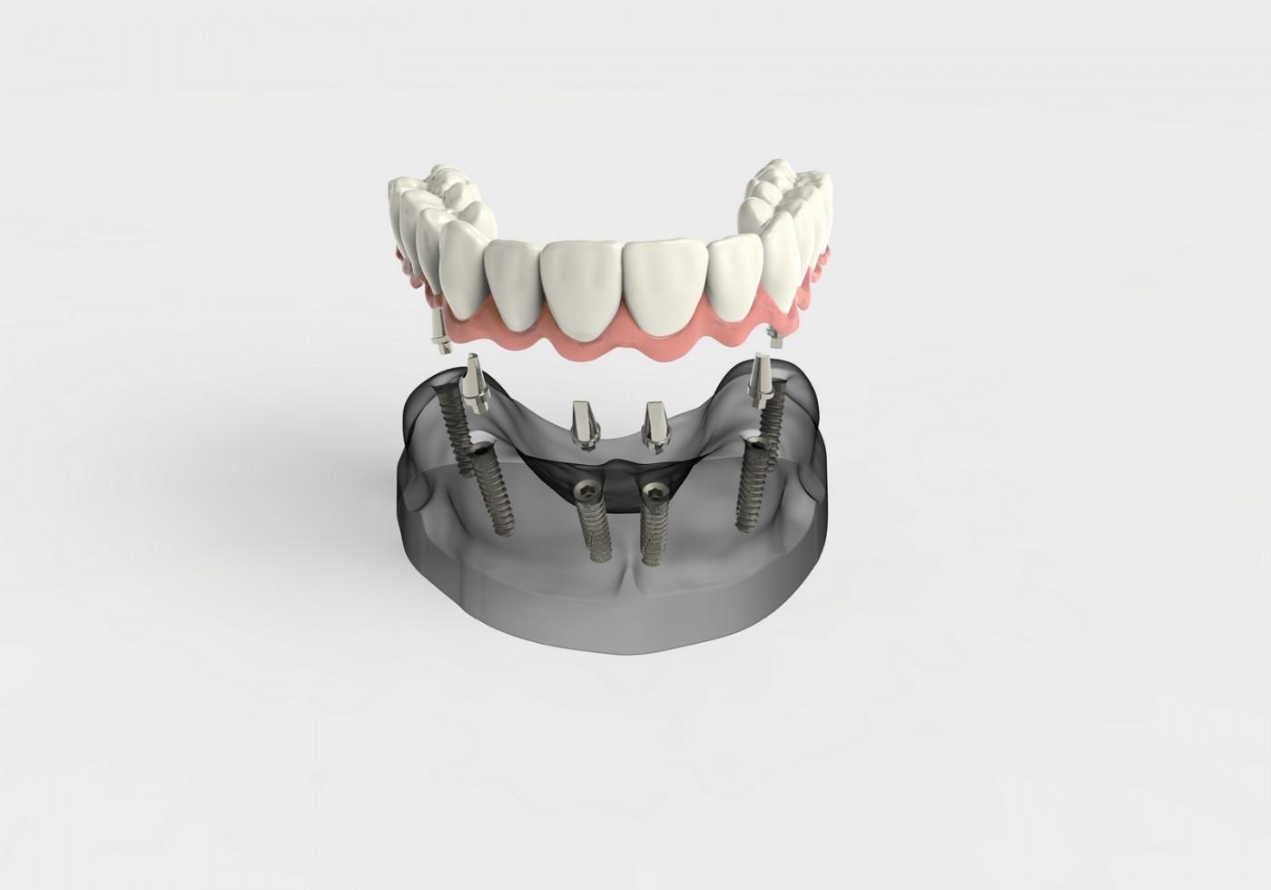 Implanturi dentare- avantaje