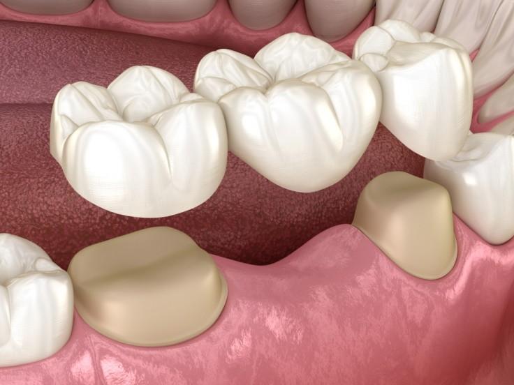 Punte dentara sau implant dentar