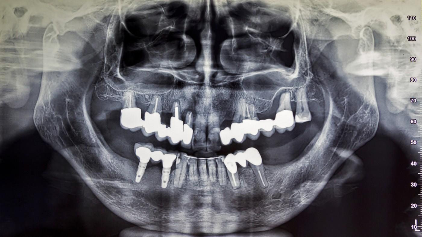 Radiologie digitală Brăila