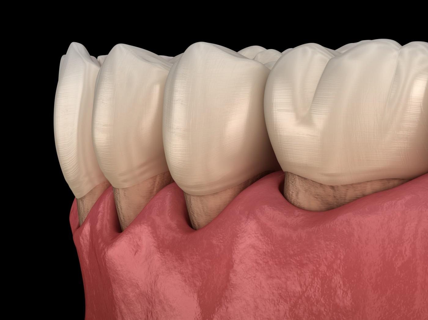 Parodontoza moderată