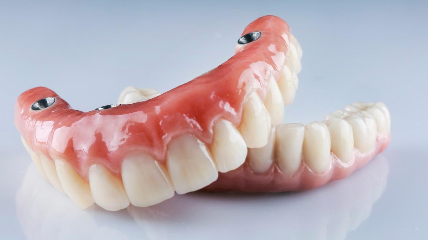 Proteză dentară fixă pe implanturi Brăila